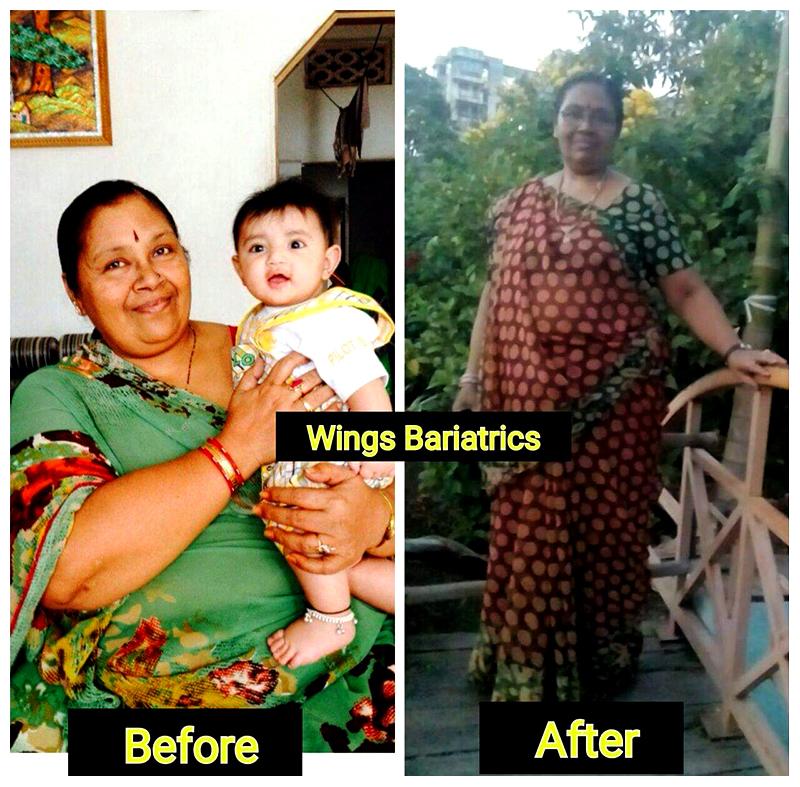 Anusuyaben Patel