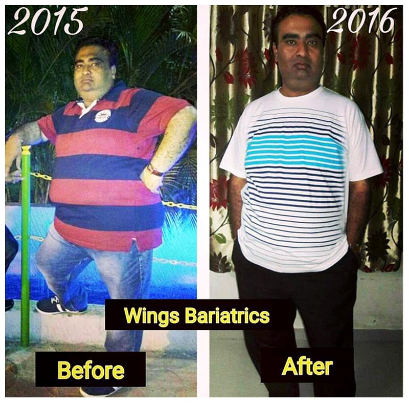 Manish Batliwala, 41 Years, Surat