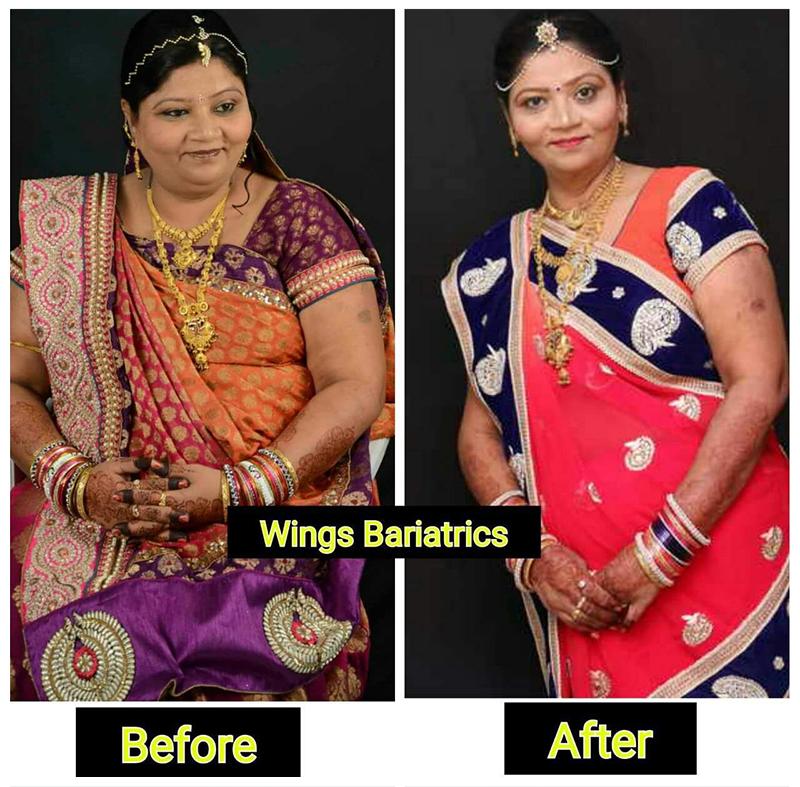 Neetaben Patel, 50 Years, Bilimora, Gujarat
